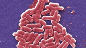 rezistente-ndaj-antibiotikeve