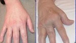 artritit reumatik