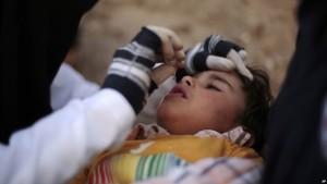 Poliomelitit